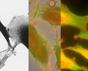 HeLa Zellen